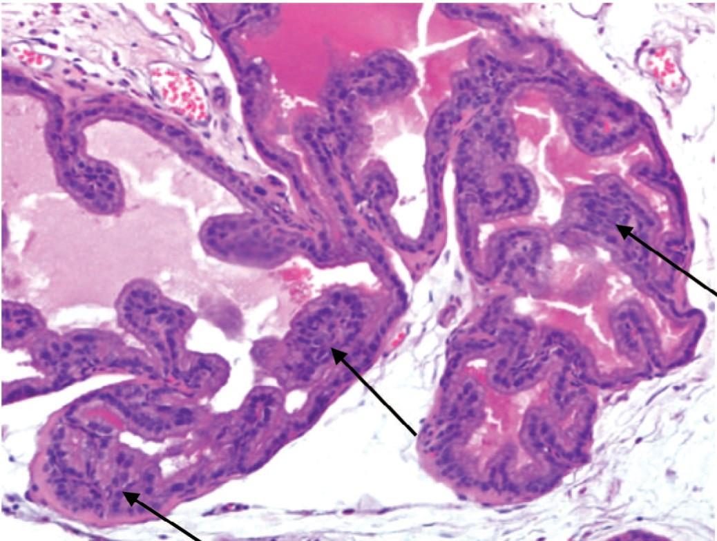 Развитие ДГПЖ с очаговой ПИН низкой степени (указаны стрелками) у крыс с МС. Окраска гематоксилином и эозином