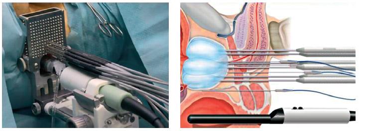 Урология лечение аденомы предстательной железы