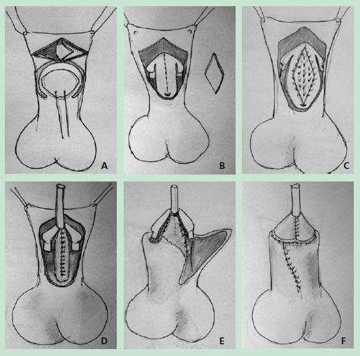Как действует крем для увеличения полового члена