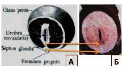 Половой член увеличился в диаметре возле головки