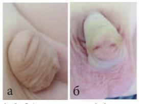Операция при гипоспадии у ребенка фото