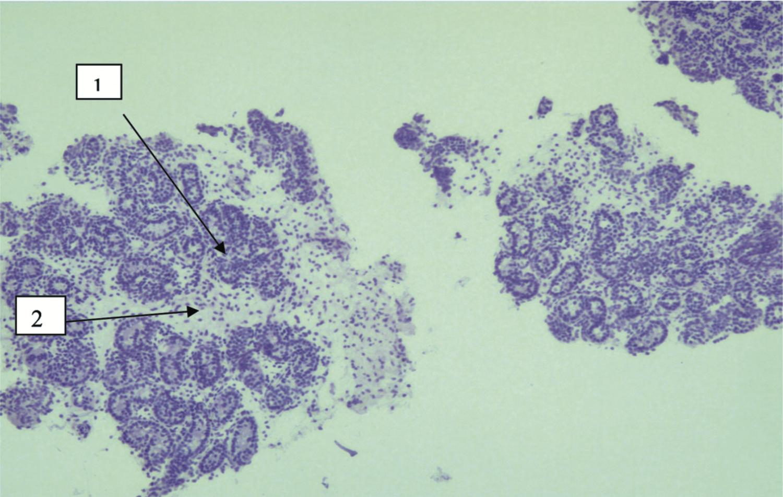 Биоптат яичка. Световая микроскопия. Легкая степень гипоплазии яичка.
