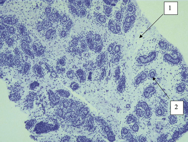 Биоптат яичка. Световая микроскопия. Тяжелая степень гипоплазии яичка