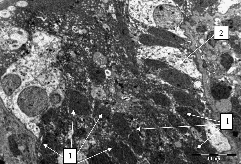 Биоптат яичка. Тяжелая степень гипоплазии яичка. Электронная микроскопия