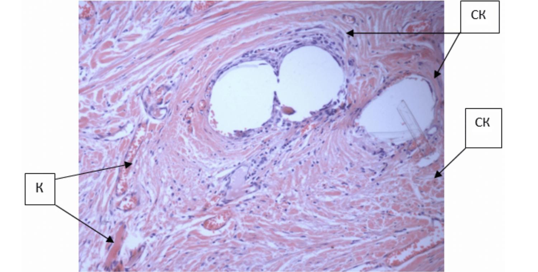 Формирование общего соединительно-тканного каркаса (СК) между и вокруг волокон имплантированного сетчатого импланта.