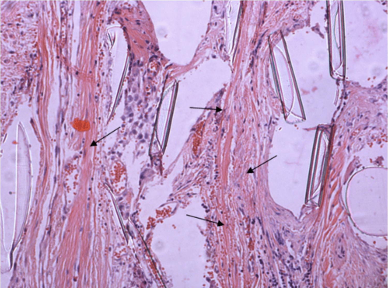 Микропрепарат фрагмента удаленного сетчатого импланта