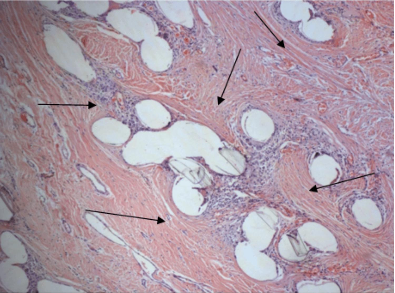 Гистологический препарат фрагмента сетчатого импланта из хирургической сетки ЭСФИЛ через 6 месяцев после передней кольпопексии у пациентки с цистоцеле IV ст.