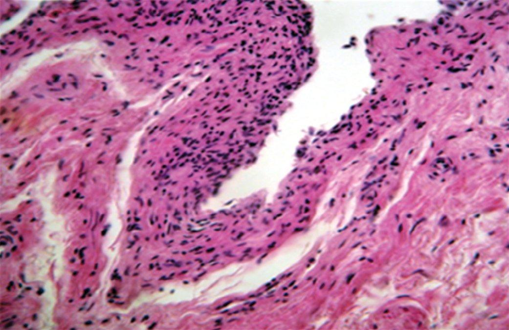 Рис. 1. Десквамация уротелия и хроническое воспаление слизистой оболочки. Окраска гематоксилин-эозином. Увеличение 200