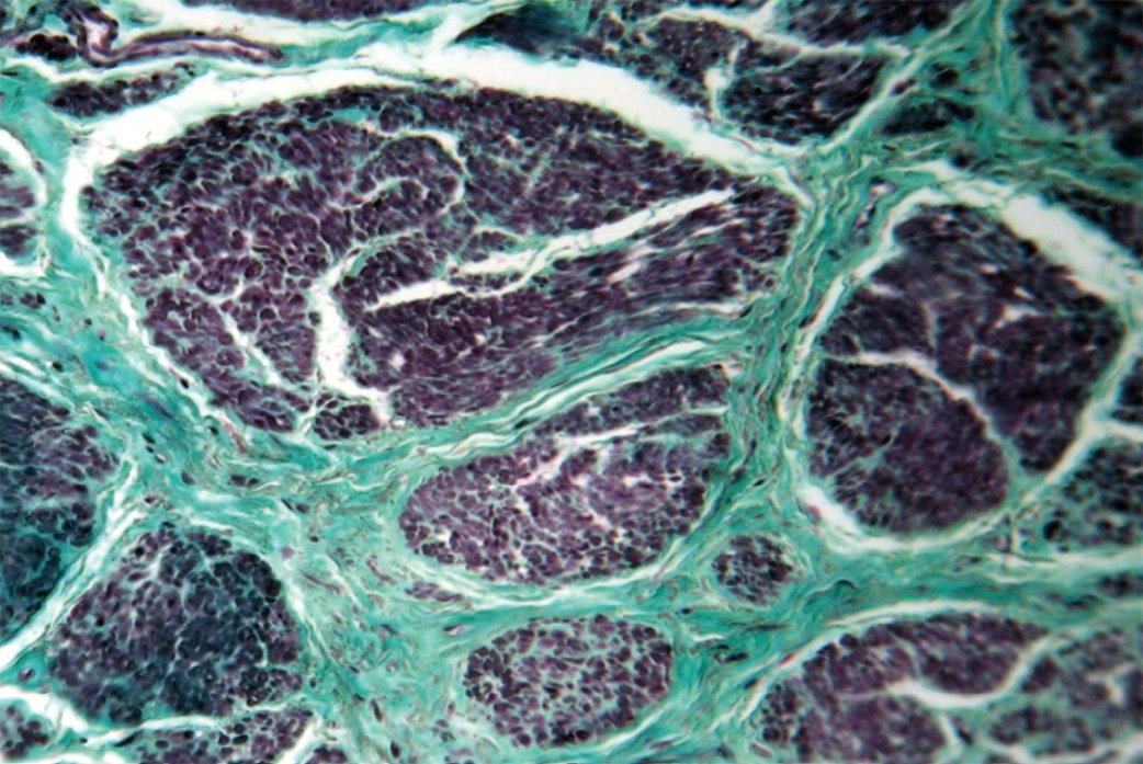 Рис. 2. Разрастание грубоволокнистой соединительной ткани в виде узкопетлистой сети между атрофированными мышечными пучками. Окраска по Массону. Увеличение 160