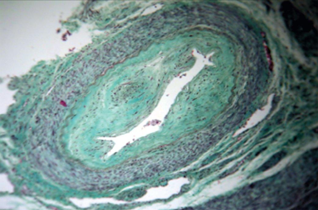 Рис. 4. Крупная артерия мышечного типа с атрофией и склерозом циркулярной гладкой мускулатуры медии, выраженным утолщением интимы за счет разрастания соединительной ткани, а также значительным сужением просвета. Окраска по Массону. Увеличение 160