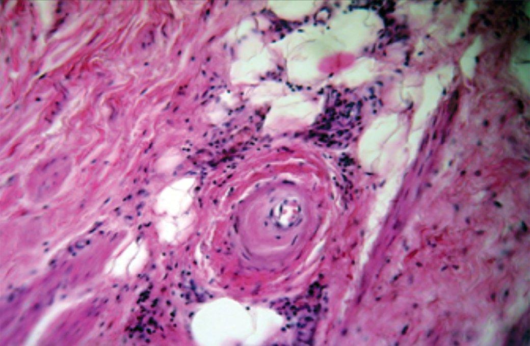 Рис. 5. Гиалиноз мелкой артерии с утолщением стенки и резким сужением просвета. Окраска гематоксилин-эозином. Увеличение 200