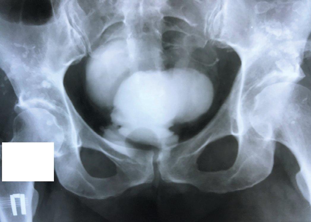 Рис. 13. Ретроградная цистограмма после конверсии илеумкондуита Bricker в ортотопический резервуар Studer