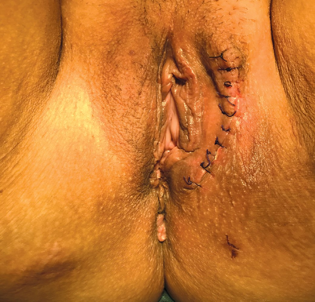 Рис. 8. Вид промежности после операции. Минимальная деформация донорской зоны