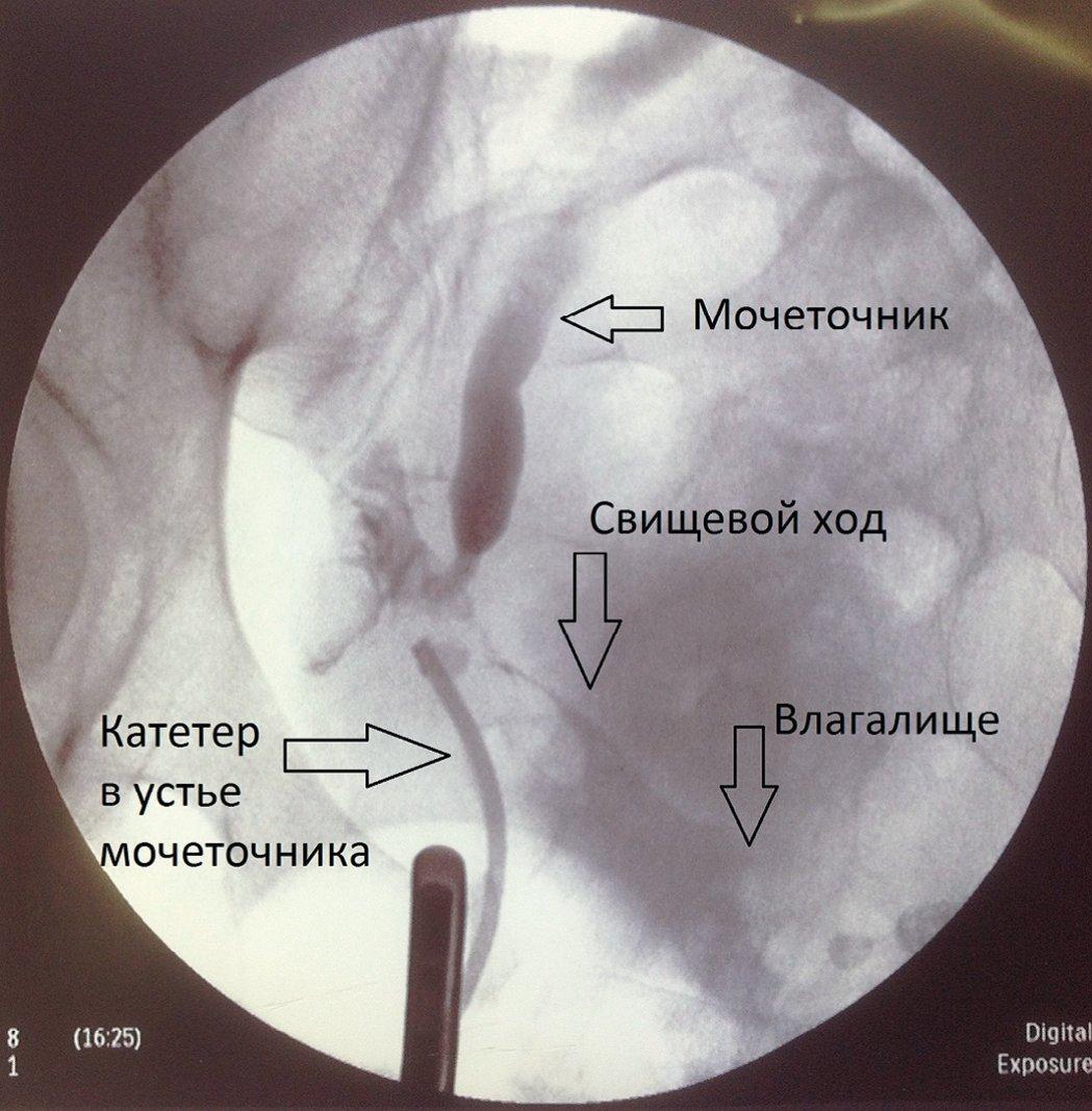 Рис. 3. Ретроградная уретерограмма больной С.