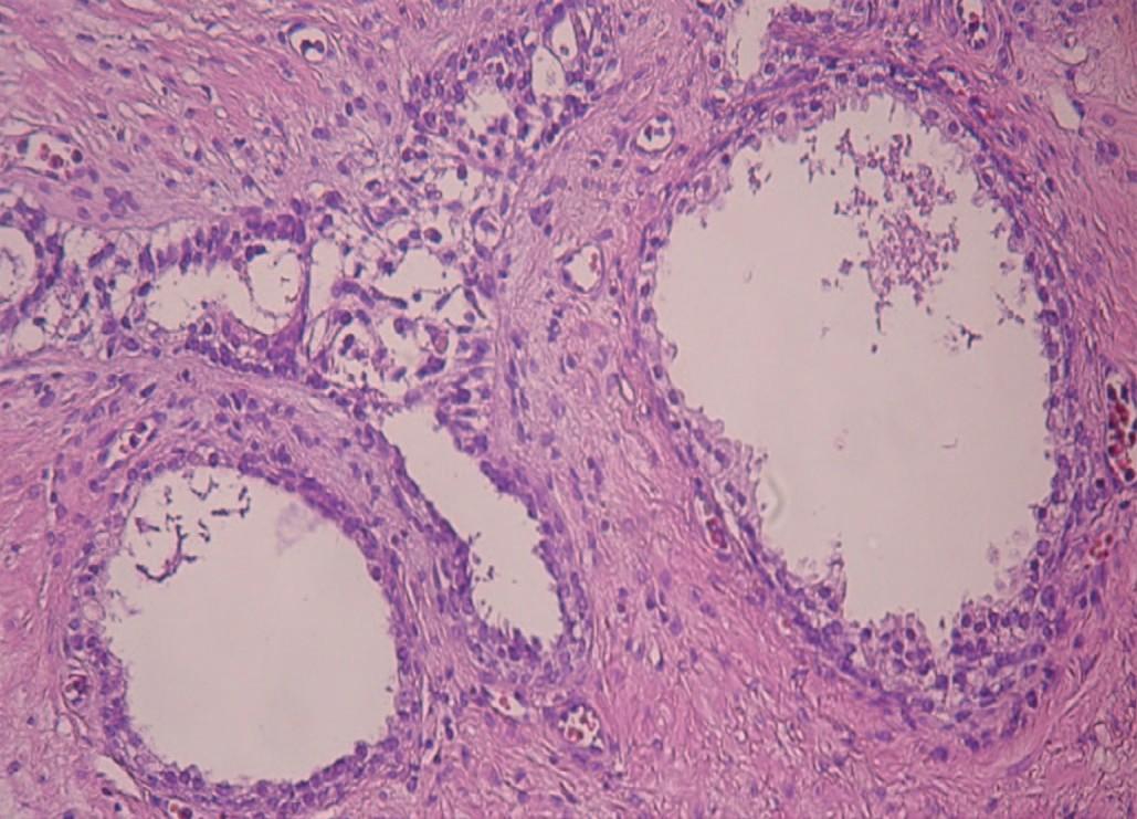 Кистозное расширение оставшейся ткани ПЖ в периферической зоне, очаговая плоскоклеточная метаплазия эпителия. Окраска гематоксилином и эозином. Увеличение 200