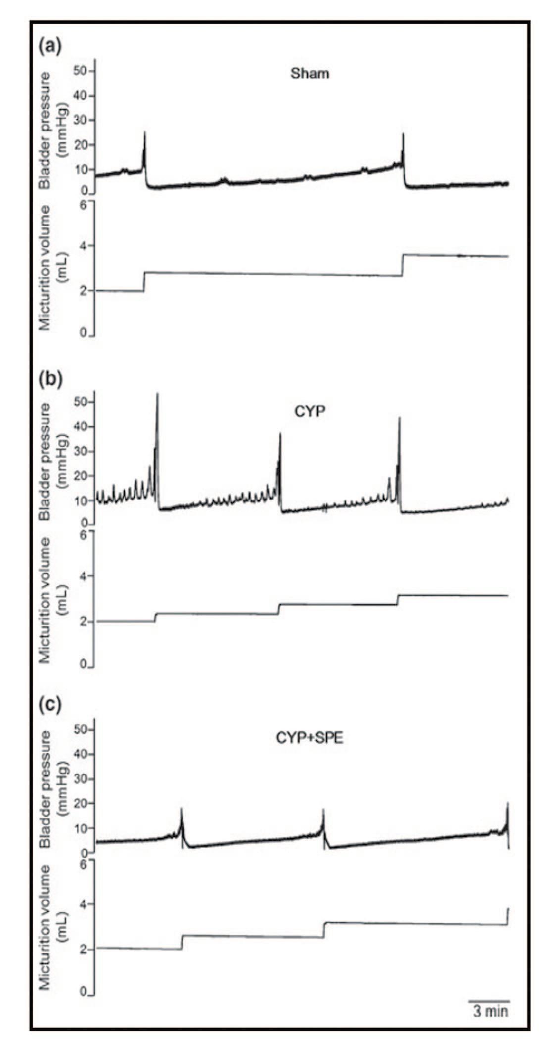 Результаты цистометрии у крыс, получавших плацебо (а), с индуцированным циститом (b) и получавших SRE (с) [40].