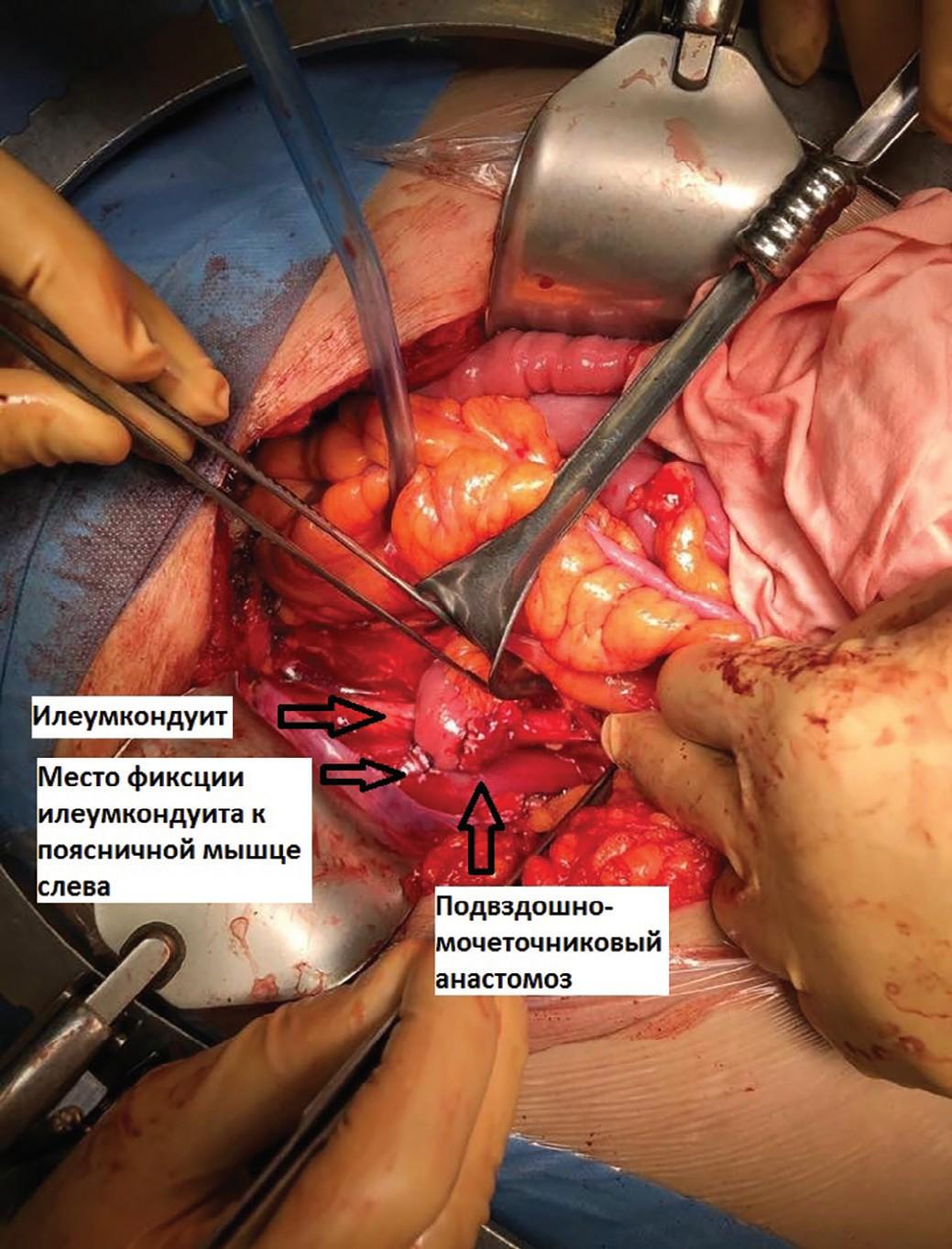 Проксимальный конец илеумкондуита, проведенный под брыжейкой сигмовидной ободочной кишки и фиксированный отдельными швами к поясничной мышце, сформирован уретероилеоанастомоз
