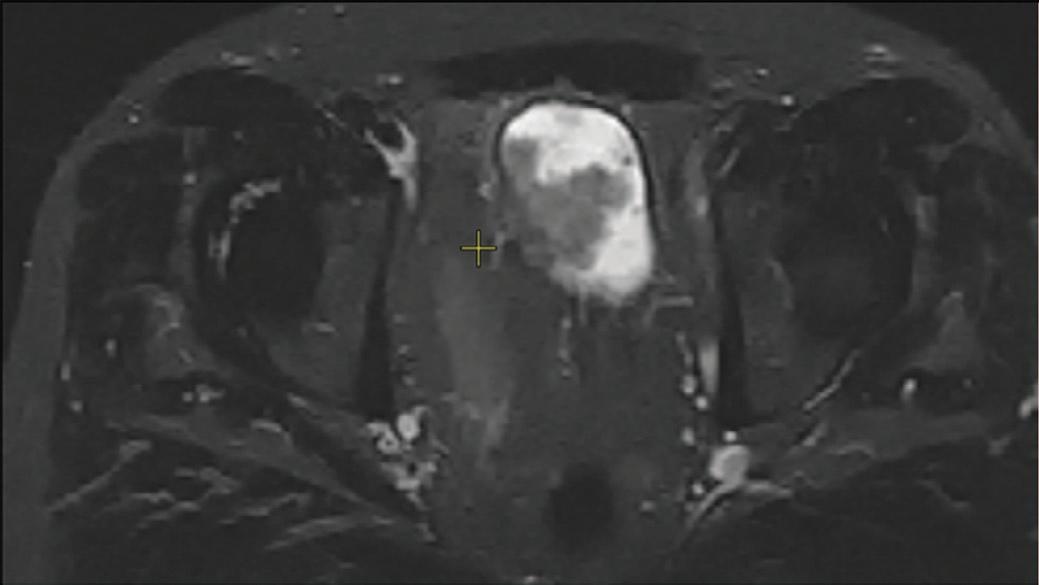МСКТ мочевого пузыря. Множественные экзофитные образования мочевого пузыря с распространением до паравезикальной клетчатки.