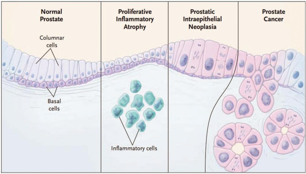 Пролиферативная воспалительная атрофия как предшественник простатической интраэпителиальной неоплазии и рака предстательной железы. Слева направо: 1-ая картинка - Нормальный эпителий (название), столбчатые клетки (вверху), базальные клетки (внизу); 2-ая картинка – пролиферативная воспалительная атрофия (название), воспалительные клетки (внизу); 3-я картинка – ПИН; 4-ая картинка – РПЖ [24]