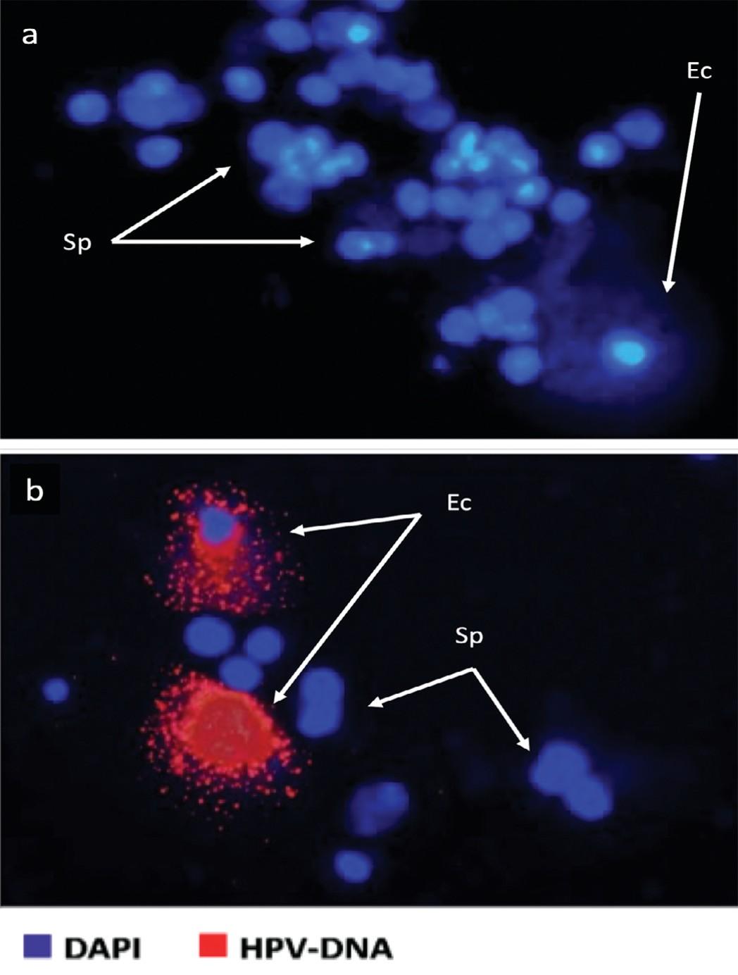 Результаты анализа FISH на ВПЧ в образцах спермы. Вверху – отрицательный образец в отношении спермы и слущенного эпителия, внизу – положительный результат для слущенного эпителия