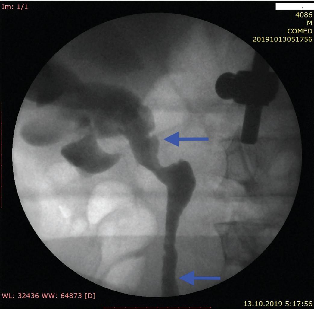 Замещенный участок мочеточника – показан стрелками (ретроградная уретеропиелография через 12 недель после операции)