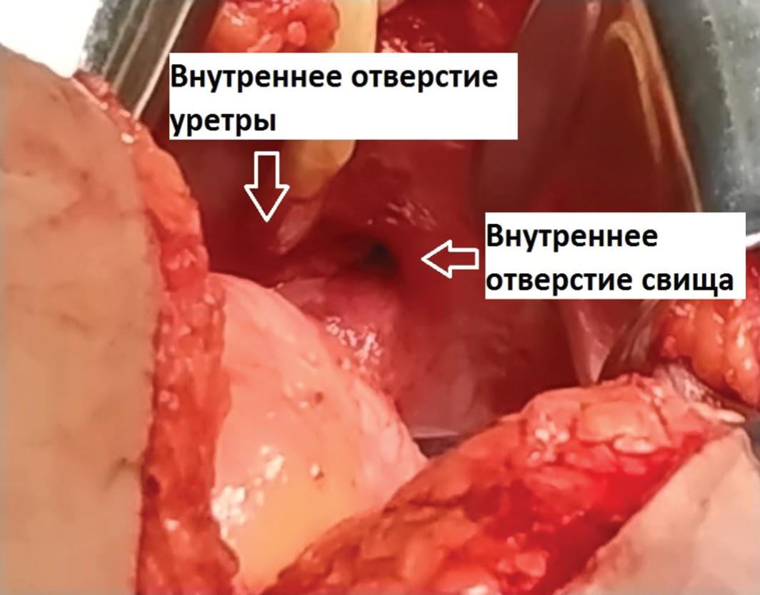 Больная А. Интраоперационное фото. Внутреннее отверстие свища до 7 мм, воронкообразно сужающееся до нескольких миллиметров, расположенное в области передней стенки мочевого пузыря позади симфиза, справа и над внутренним отверстием уретры