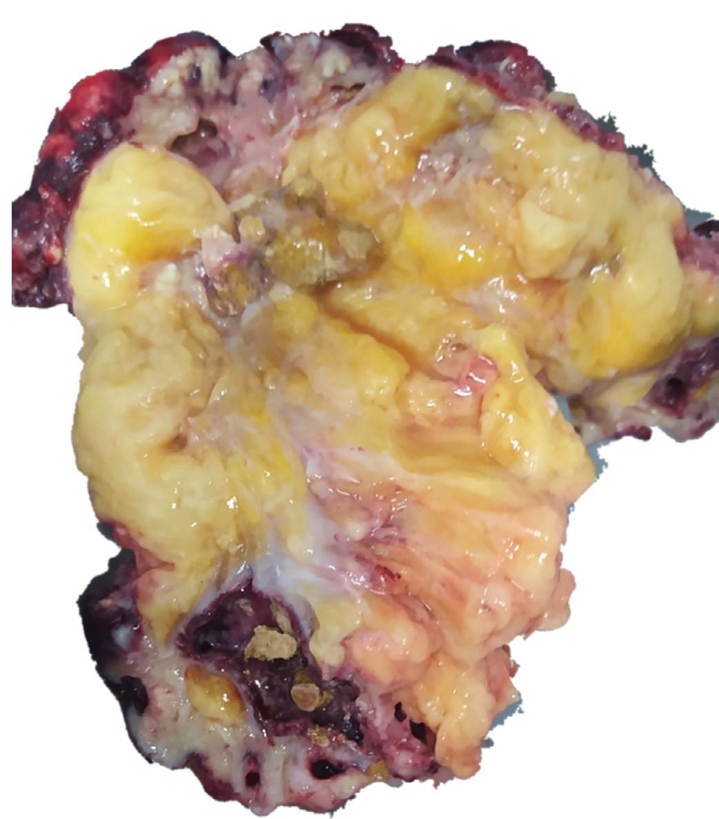 Удаленная левая почка (макропрепарат). Средний сегмент паренхимы замещен жировой тканью