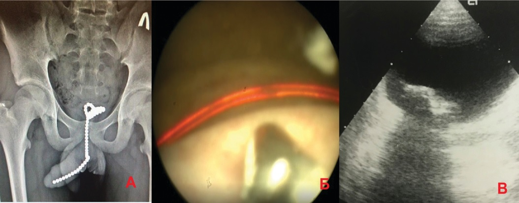 Инородные тела мочевого пузыря у пациентов I группы А – обзорная рентгенограмма – магниты, Б – эндоскопия – проволока, В – УЗИ мочевого пузыря – пластилин