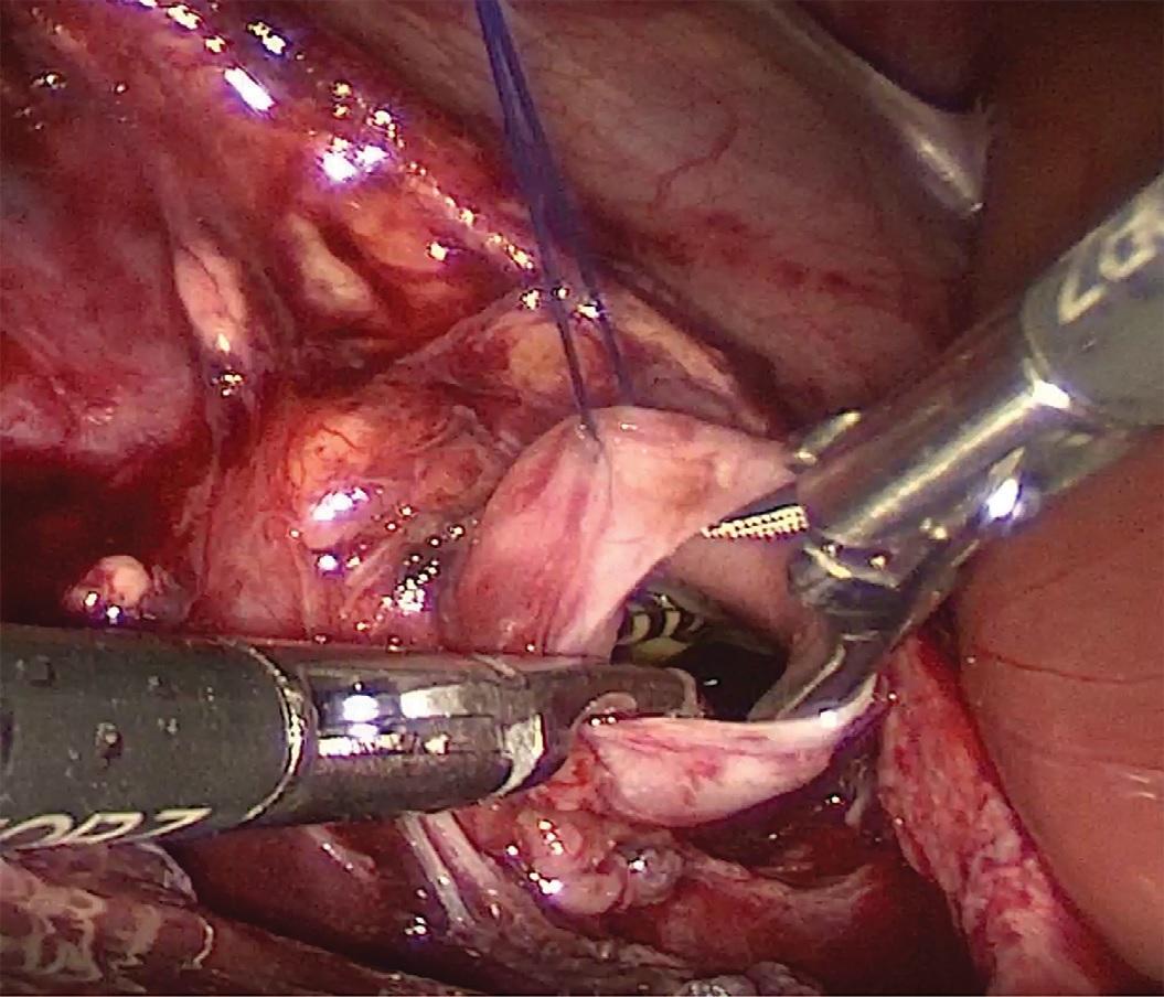 Лапароскопия, пиелотомия, удаление стента у пациента II группы