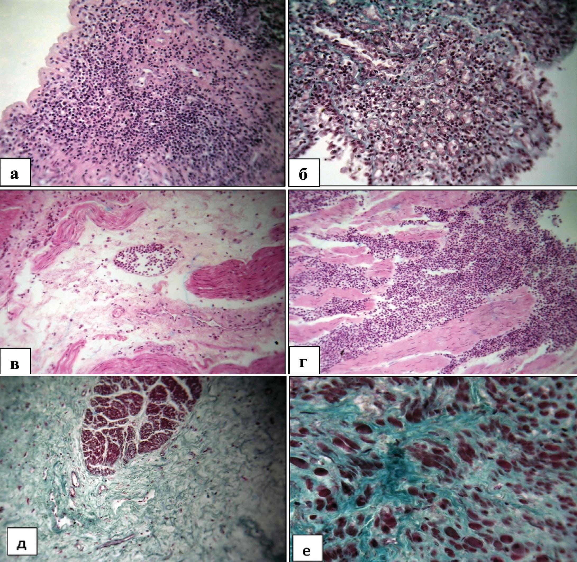 Структурные изменения мочевого пузыря у мужчин пожилого и старческого возраста при декомпенсированной ГПЖ. Окраска гематоксилином и эозином
