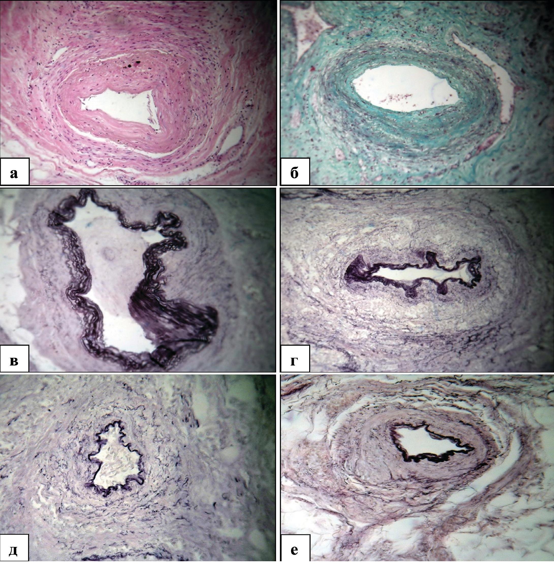 Структурные изменения внутриорганных артерий мочевого пузыря у мужчин пожилого и старческого возраста при декомпенсированной ГПЖ