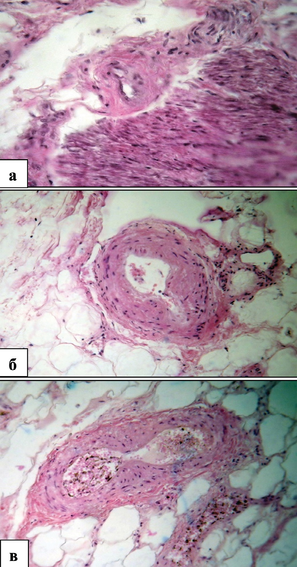 Структурные изменения внеорганных и внутриорганных артерий мочевого пузыря у мужчин пожилого и старческого возраста при декомпенсированной ГПЖ. Окраска гематоксилином и эозином.