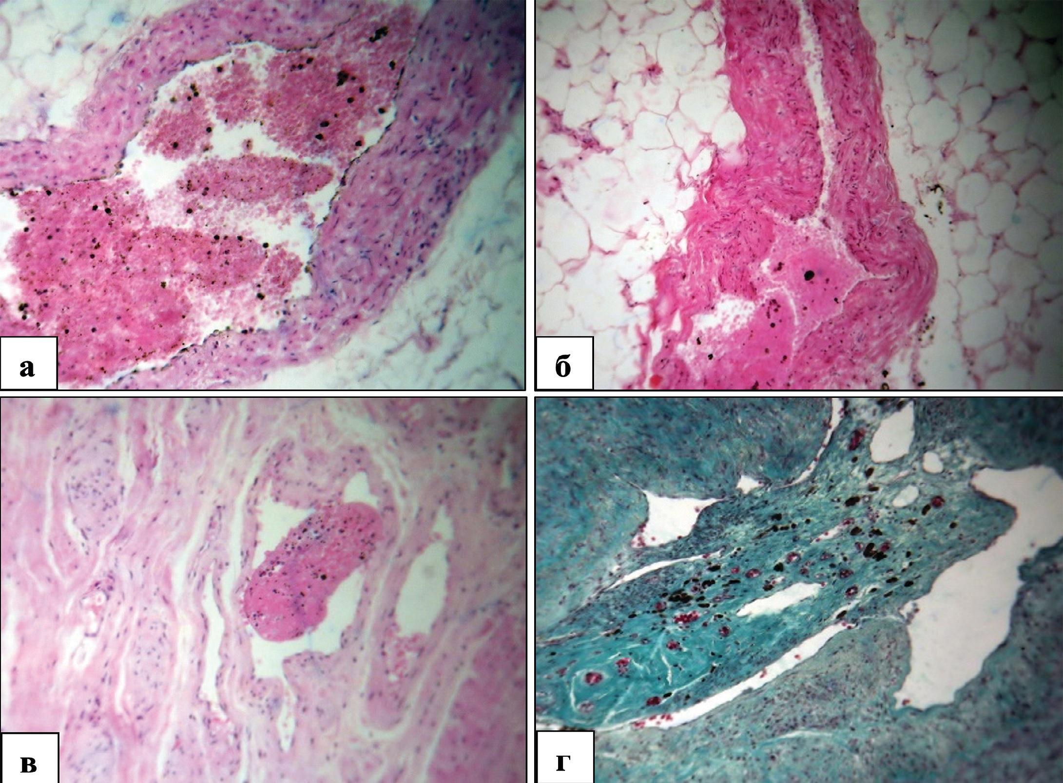 Структурные изменения внеорганных и внутриорганных вен мочевого пузыря у мужчин пожилого и старческого возраста при декомпенсированной ГП. Окраска гематоксилином и эозином (а, б, в) и по Массону