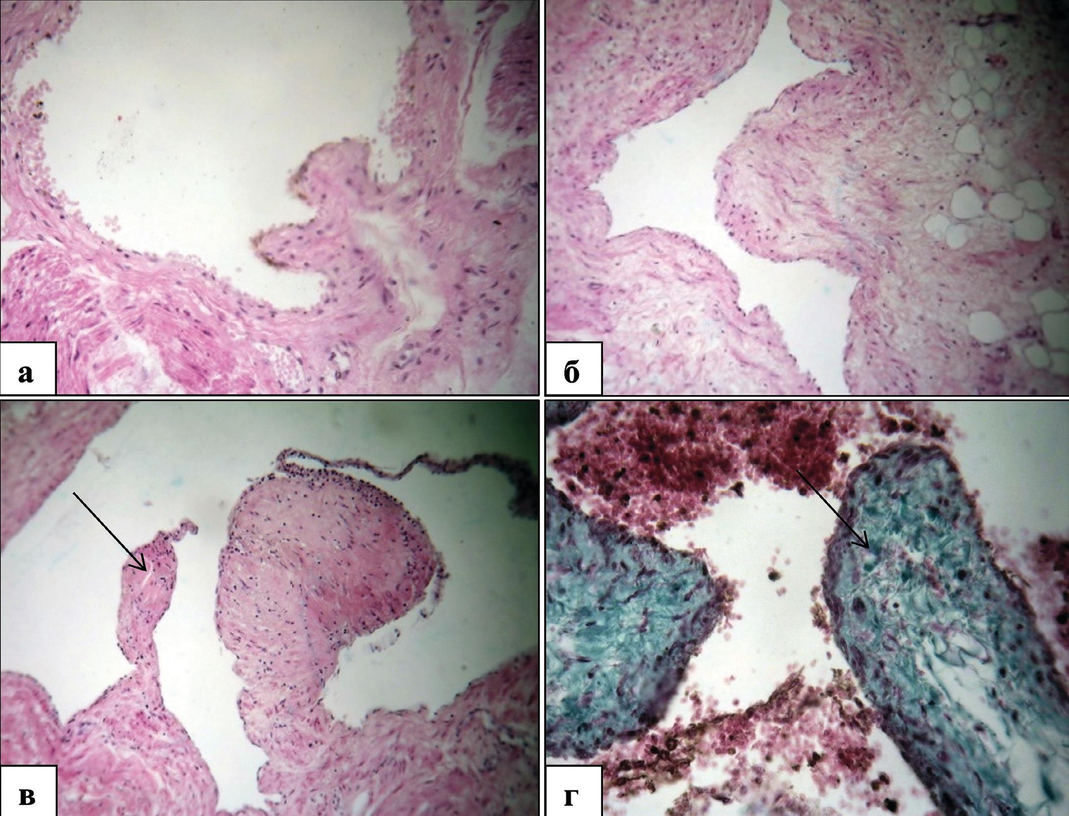 Структурные изменения регуляторных структур венозного русла мочевого пузыря у мужчин пожилого и старческого возраста при декомпенсированной ГП. Окраска гематоксилином и эозином (а,б, в) и по Массону (г)