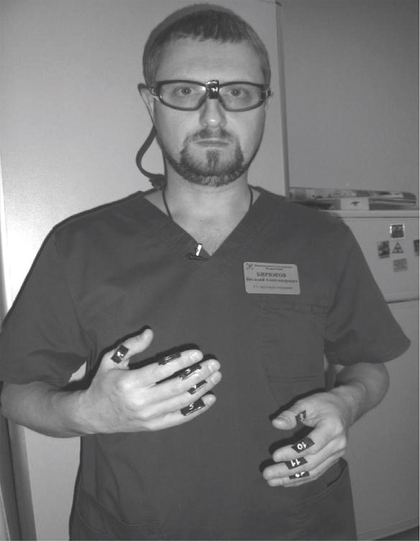Размещение сборок дозиметров для измерений локальных доз облучения пальцев и глаз оператора