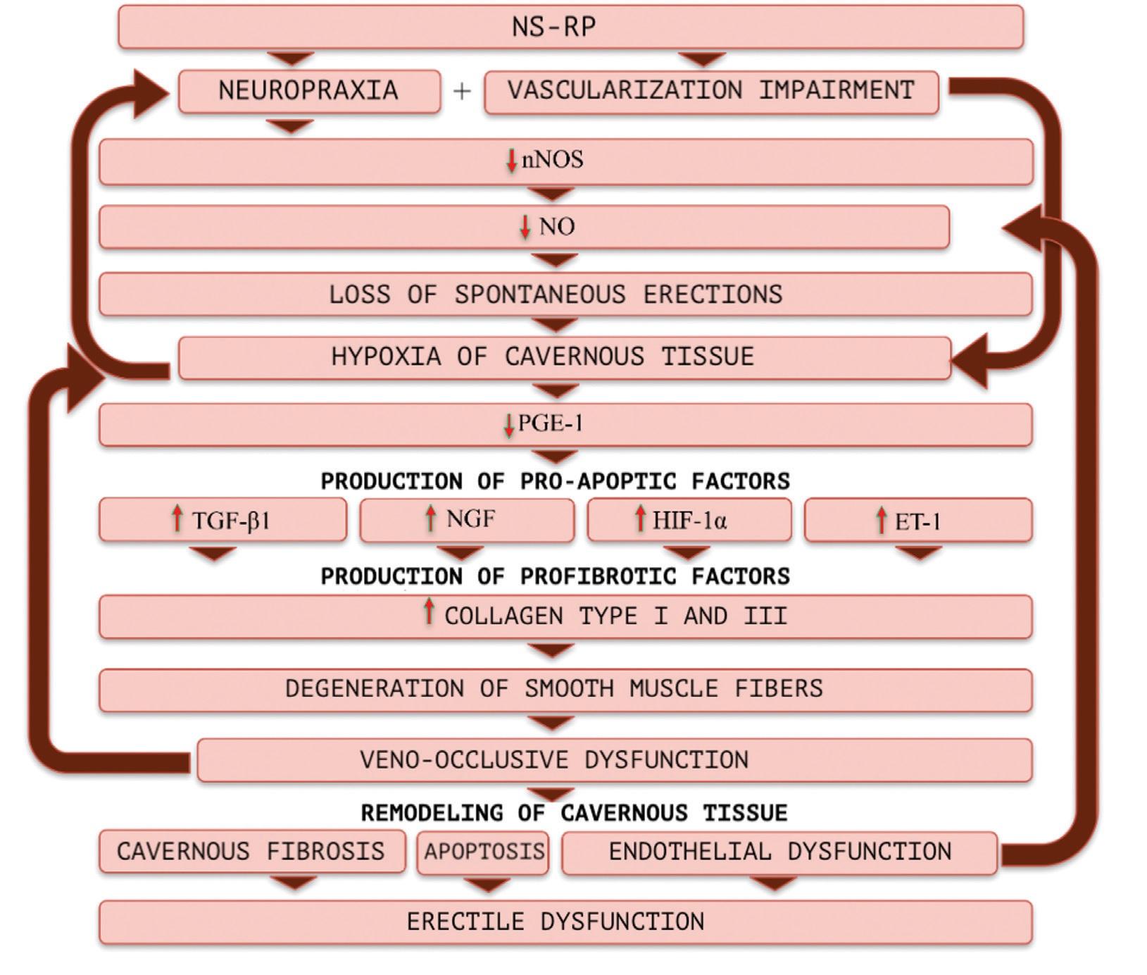 Pathogenesis of erectile dysfunction after radical prostatectomy